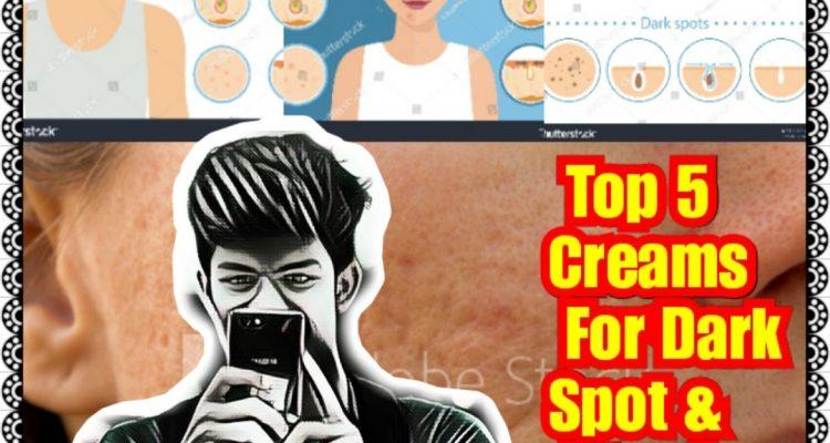 चेहरे के दाग और पिंपल हटाने की क्रीम [Top 5 Creams In Hindi]